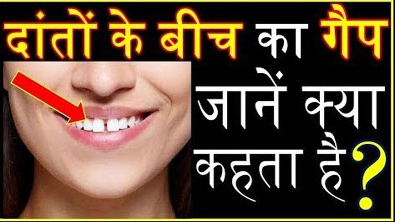 जिन व्यक्तियों के दांतो के बीच होती है खाली जगह वो लोग होते है किस्मत के धनी ...